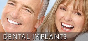 dental implant century City