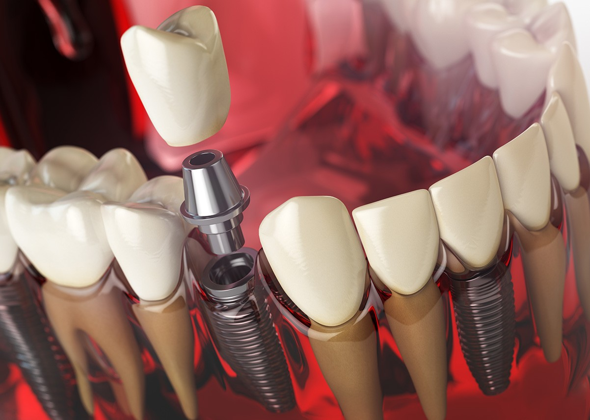 dental-implants-how-many