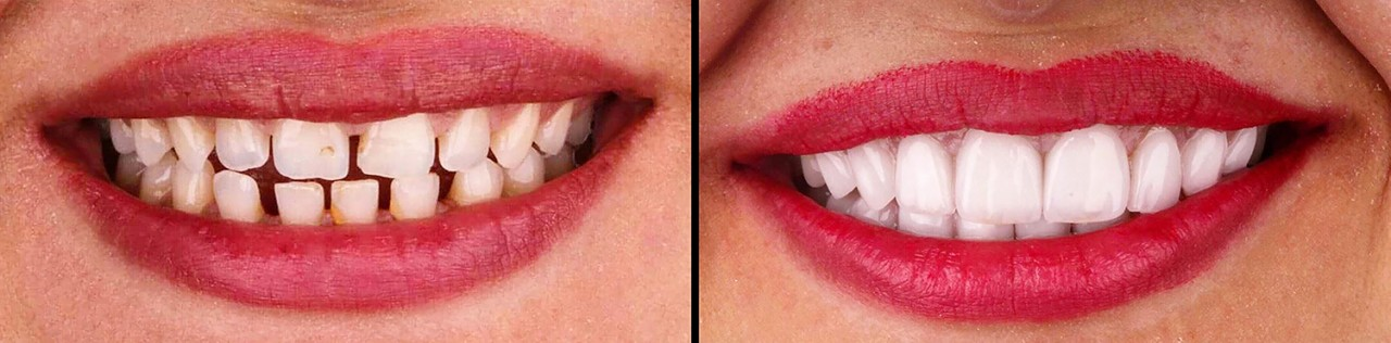 veneers-pros-cons