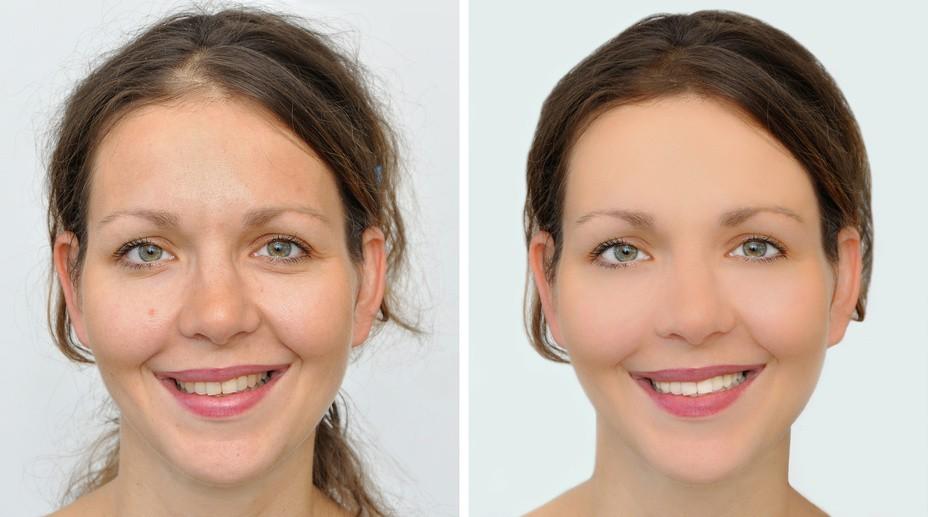 anti aging dentistry los angeles