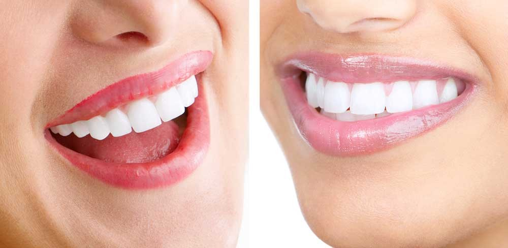 porcelain-veneers-beverly-hills