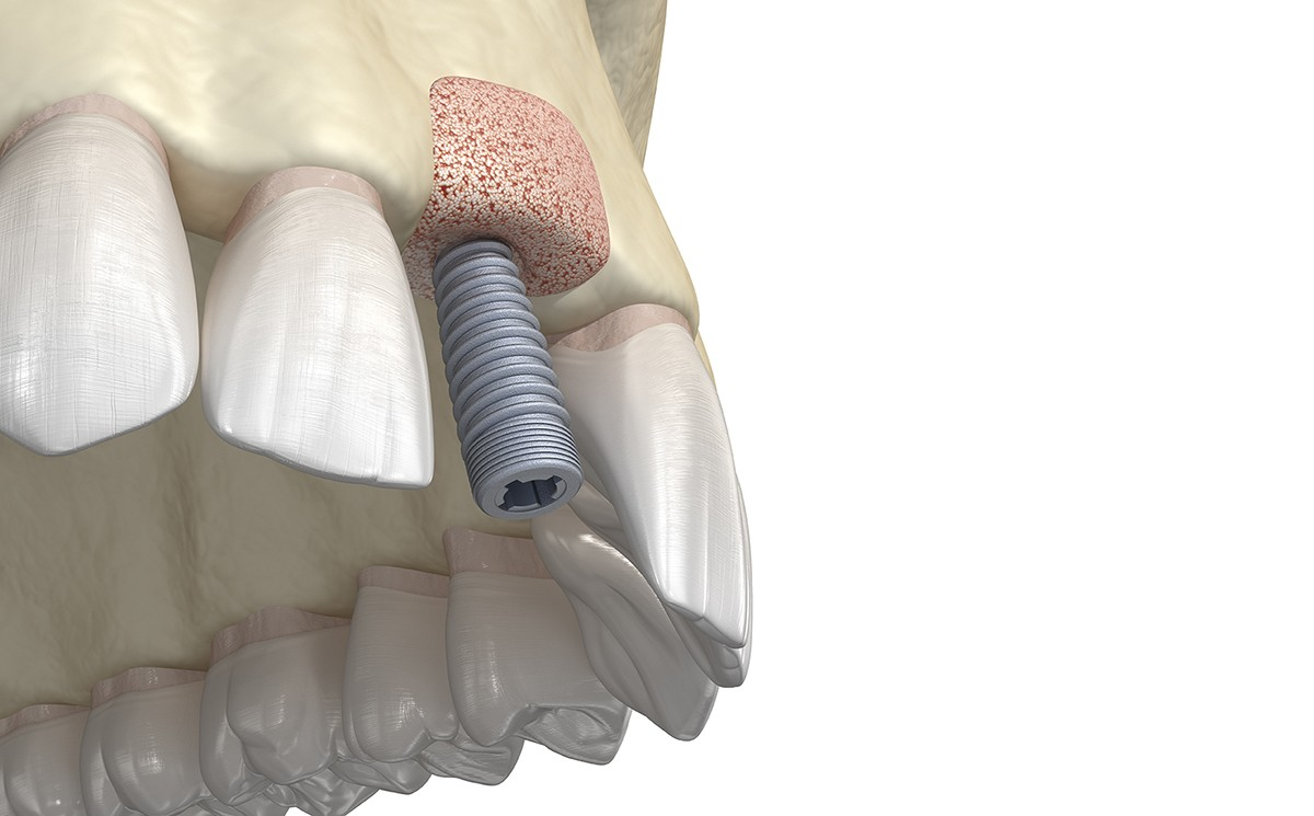 bone-graft-dental-implants-beverly-hills