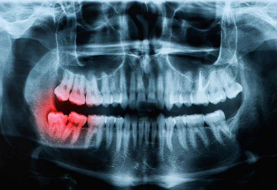 wisdom-teeth-removal-los-angeles
