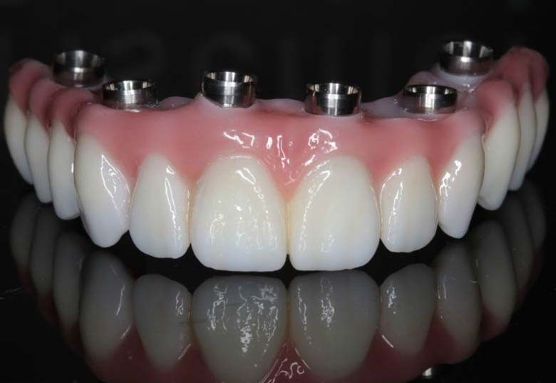 full-mouth-implants-los-angeles-full-arch