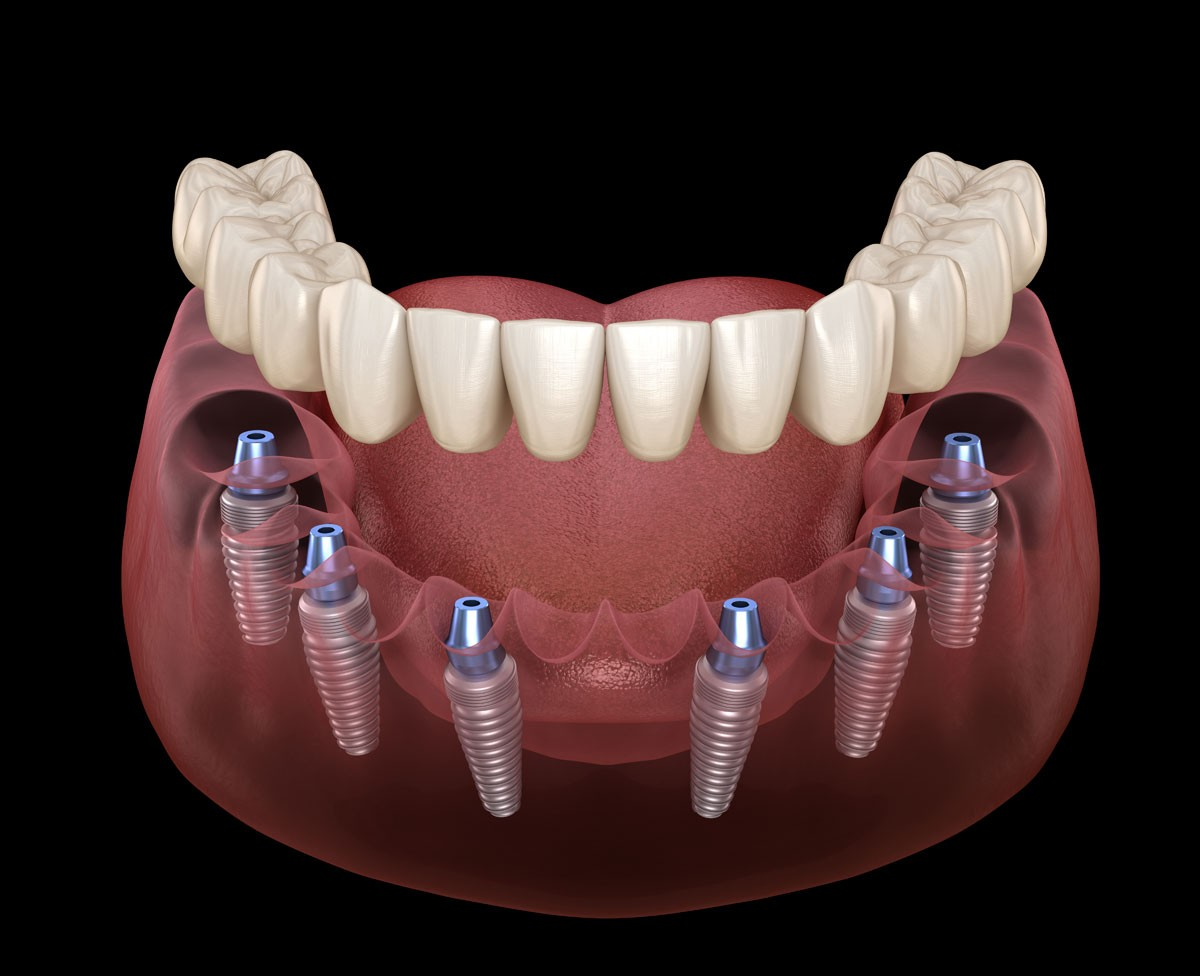 all-on-all-on6-dental-implants