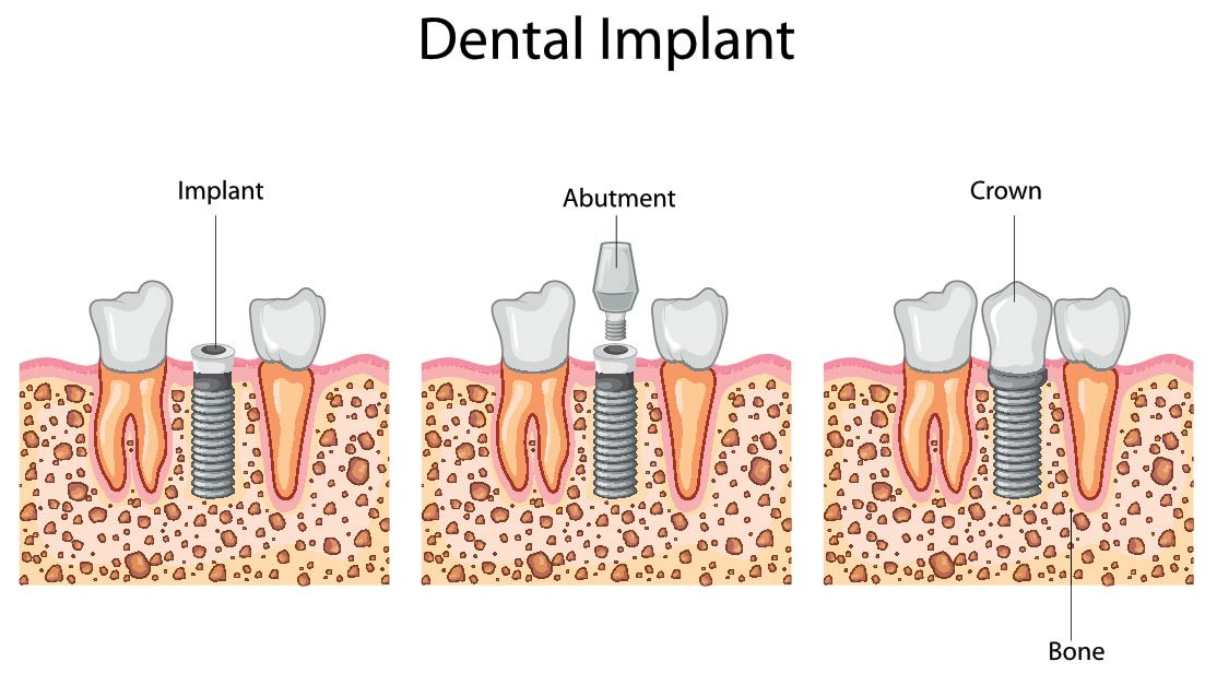 dental-implants-process