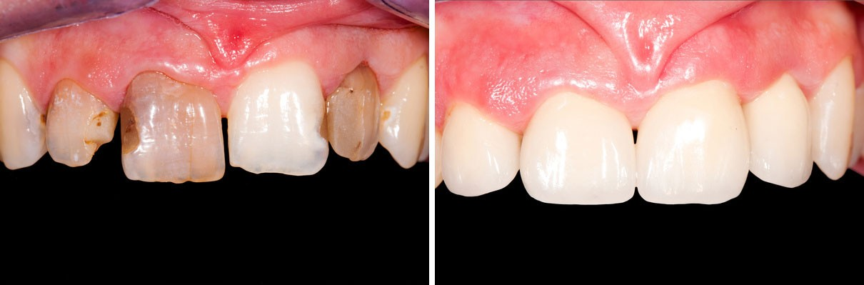 before-after-veneers-beverly-hills
