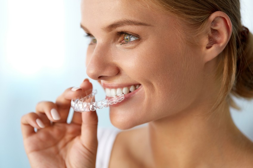 invisalign-los-angeles