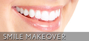 smile makeover century city